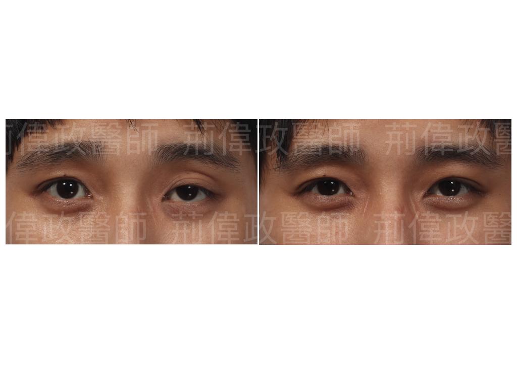 提眼瞼肌、極緻、眼整形權威、割雙眼皮推薦醫師、台北雙眼皮權威、台北雙眼皮手術推薦、台南割雙眼皮價錢、台中割雙眼皮價錢、高雄割雙眼皮價錢.jpeg