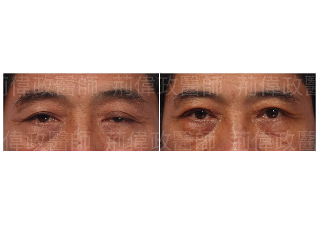 提眼瞼肌、眼瞼肌無力、大小眼、割雙眼皮手術醫師推薦、割雙眼皮恢復期多久、眼整形權威、極緻、整形外科醫師推薦、提眼肌運動.jpeg