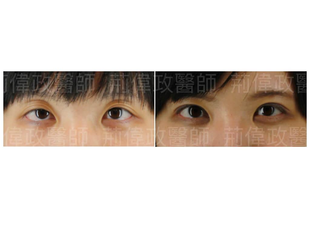 眼整形、雙眼皮手術推薦、雙眼皮自然形成、雙眼皮單眼皮、縫雙眼皮、割雙眼皮、提眼肌手術復原、提眼肌無力推薦、提眼肌失敗.jpeg