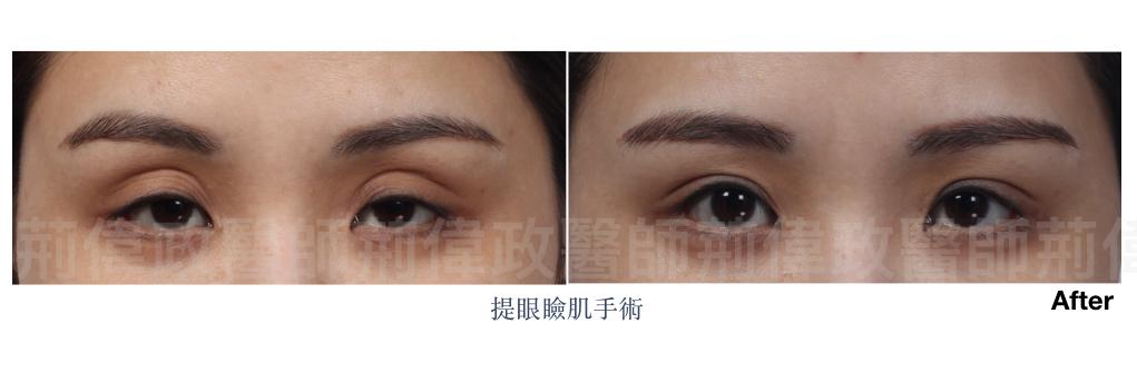 荊偉政醫師、割雙眼皮推薦醫師、台北雙眼皮權威、台北雙眼皮手術推薦、台南割雙眼皮價錢.jpeg