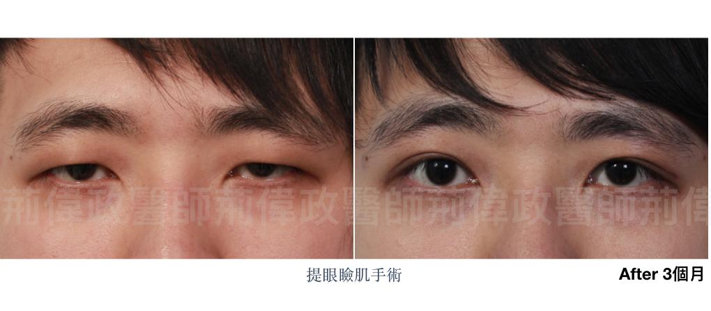 提眼瞼肌、台北雙眼皮手術推薦、訂書針雙眼皮、割雙眼皮手術醫師推薦、雙眼皮手術失敗.jpeg