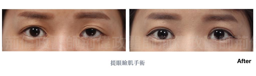 提眼瞼肌、眼瞼肌無力、眼整形推薦、眼整形外科、雙眼皮手術費用.jpeg