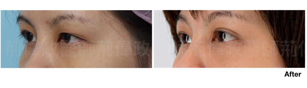 荊偉政醫師、台南割雙眼皮價錢、台中割雙眼皮價錢、高雄割雙眼皮價錢、香港雙眼皮手術價錢.jpeg