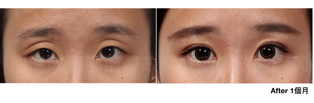 眼整形、眼整形推薦、眼整形外科、雙眼皮手術費用、雙眼皮手術推薦.jpeg