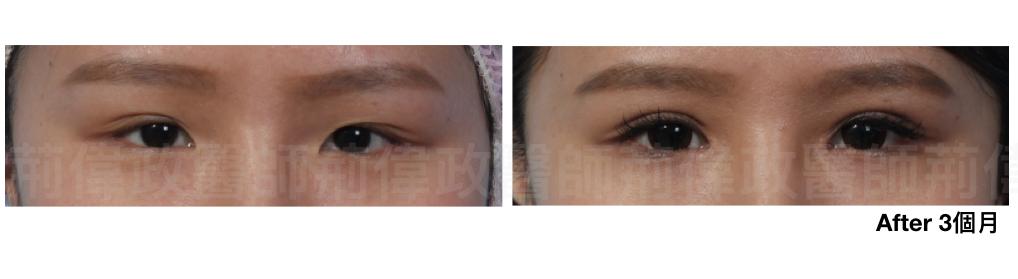 割雙眼皮、雙眼皮單眼皮、縫雙眼皮、割雙眼皮、割雙眼皮恢復期多久、.jpeg