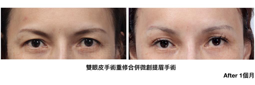 提眼瞼肌、雙眼皮手術失敗、大小眼、整形外科醫師推薦、台北有名整型診所推薦.jpeg