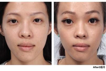 荊偉政醫師、微創提眉費用、提眉手術恢復期、內視鏡提眉香港、提眉費用.jpeg