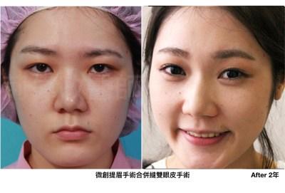 荊偉政醫師、臉部埋線拉提費用、提眉失敗、提眉手術價格、提眉手術費用.jpeg