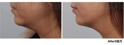 提眉肌手術費用、直接提眉、微創提眉費用、提眉手術恢復期.jpeg