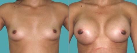 protesis-mamarias (1)