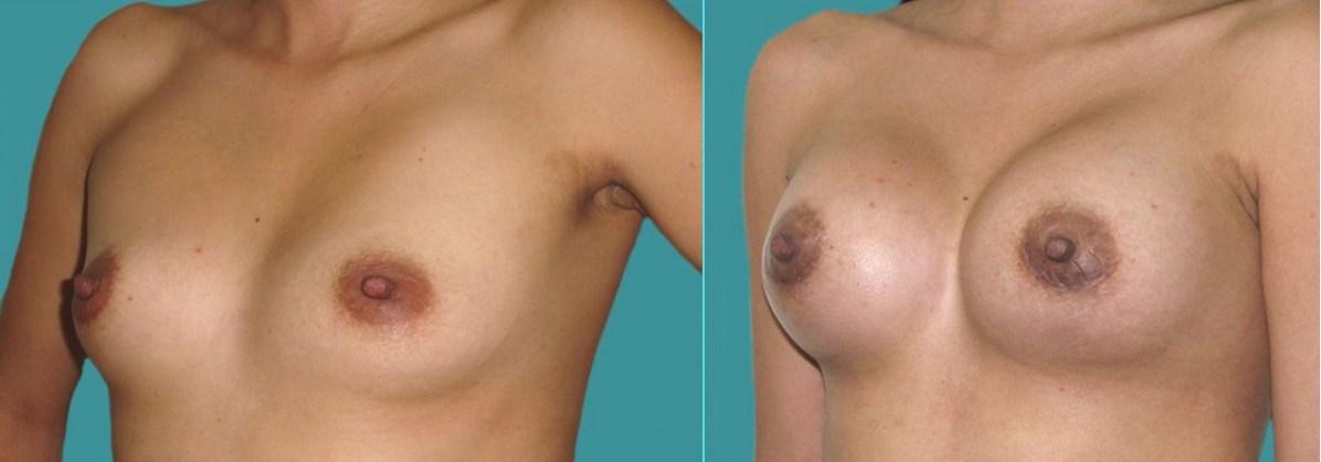 protesis-mamarias 2