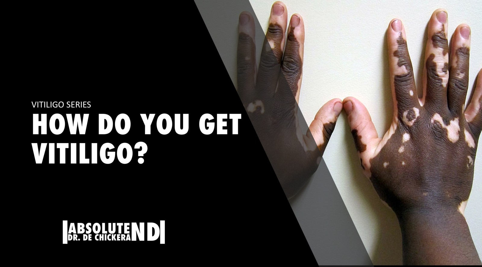 cover for blog post. image of hands with vitiligo.