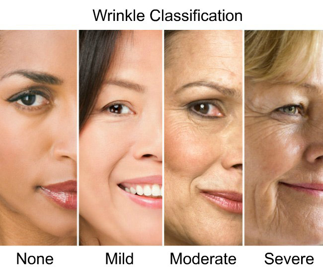 Face wrinkle classifications, none, mild, moderate, severe