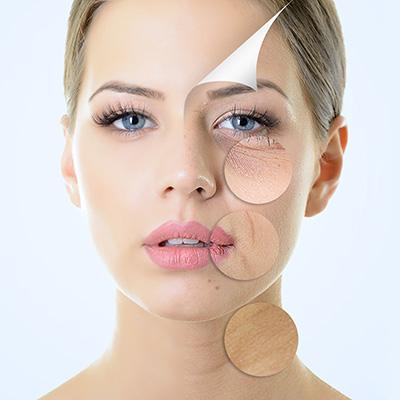 micro-laser peel, facetite, necktite, skin radiant, photofacial, lines, wrinkles, crowsfeet, facelift