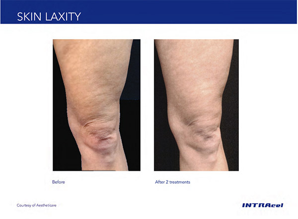 Skin laxity on legs