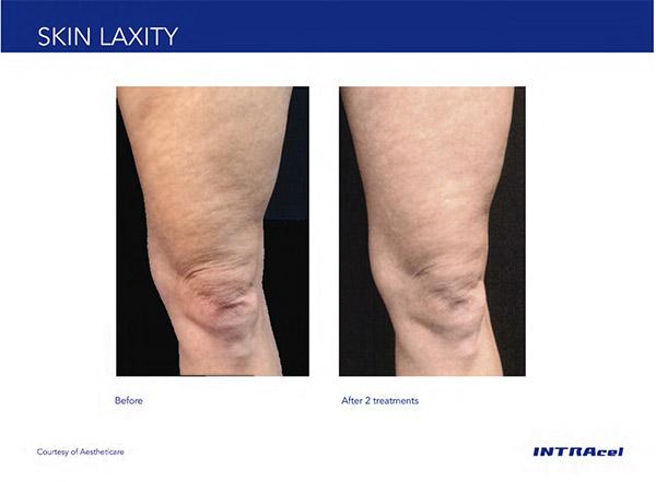 Skin laxity on legs