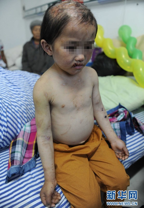 china-guizhou-little-girl-abused-by-father-burned-head-boiling-water-d