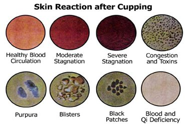 Skin Reaction After Cupping