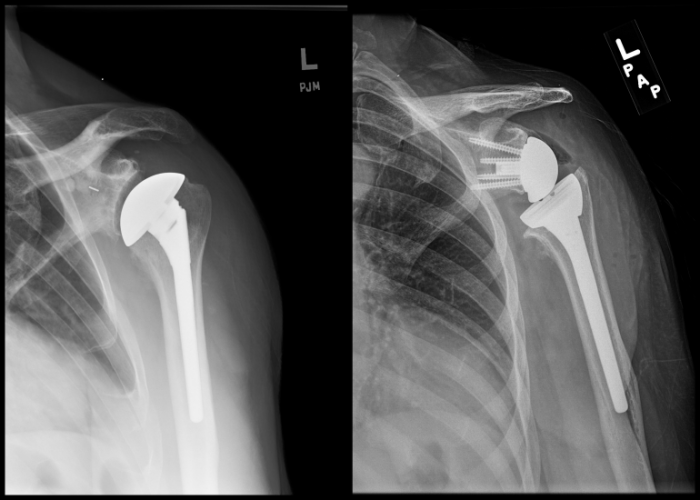 Reverse shoulder replacement- anatomic vs. reverse