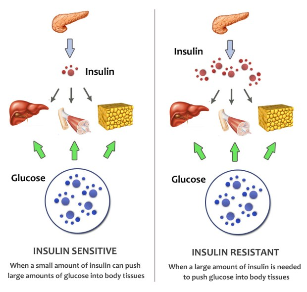 When you are insulin resistant, it has many negative implications. For one, you have higher blood glucose because the glucose can't get into the cells to be used/stored as energy and this is not good for metabolism. Also, your pancreas get stressed out, inflammation increases and you're unlikely to be in a state of potential fat burning. We want to put our body into a good metabolic state.