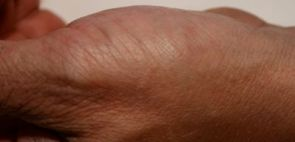 Psoriasis of the hand - after treatment