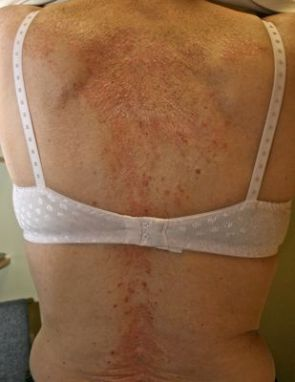 Psoriasis of the back - before treatment