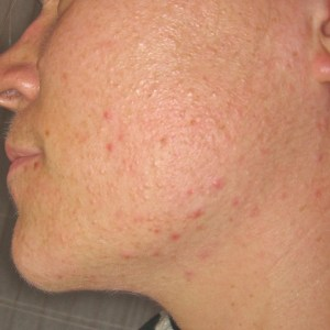 Acne before Chinese Medicine Treatment