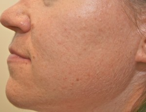 Acne after Chinese Medicine Treatment