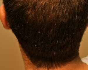 Alopecia Areata - hair loss after treatment Chinese Medicine