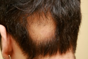 Alopecia Areata - hair loss before treatment Chinese Medicine