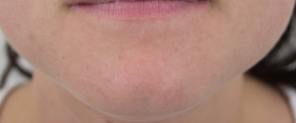 Acne - after