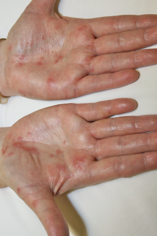 Forehead Rash? Here's What You Should Know - PinnacleHealth