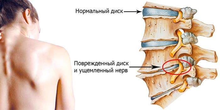 cervical osteochondrosis cause