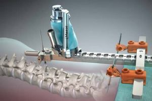 robot assisted spine surgery