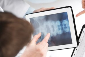 MIS-Spine-Surgery-nyc