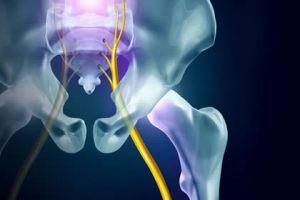 sciatica treatment nyc