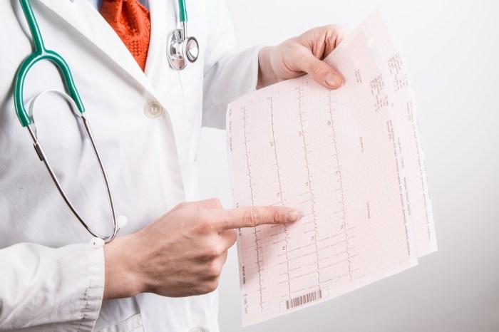 Dijagnoza atrijalne fibrilacije