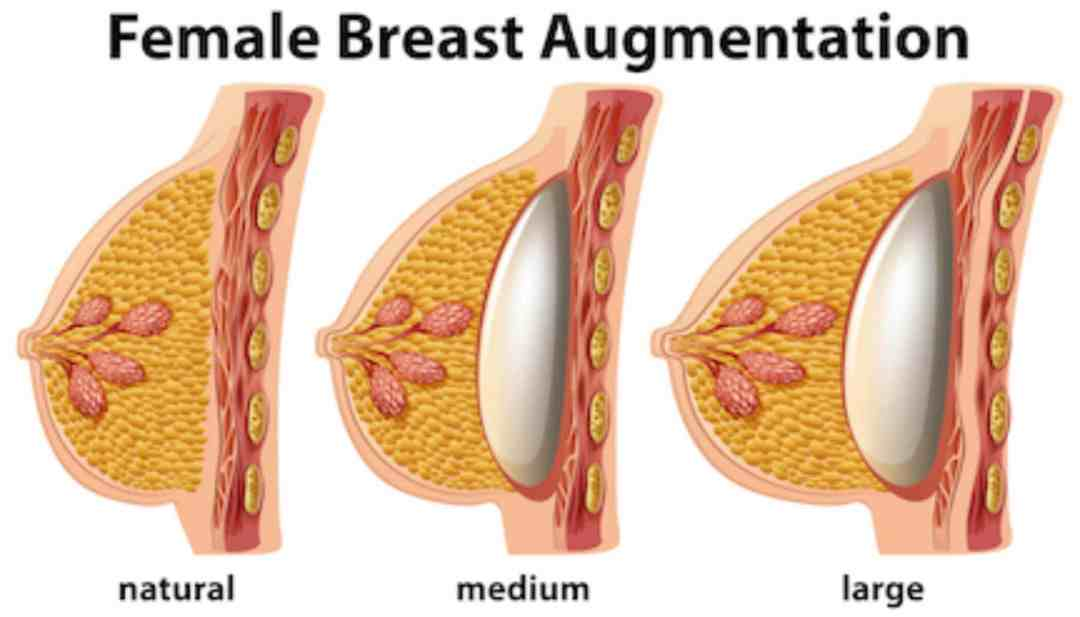 Female Breast Augmentation illustration