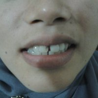 ALASAN pasien DATANG ke dokter gigi