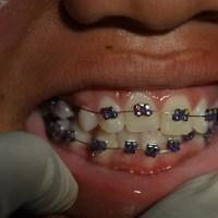 selayang pandang tentang ortodonti (behel)