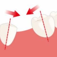 Nyelip di gigi