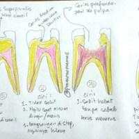 Sketsa masalah gigi yang sering terjadi #sketsagigi