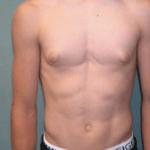 skinny gynecomastia