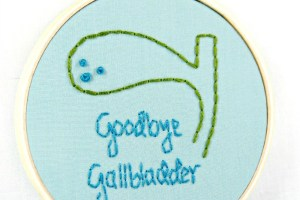 Scottsdale Gallbladder Doctor