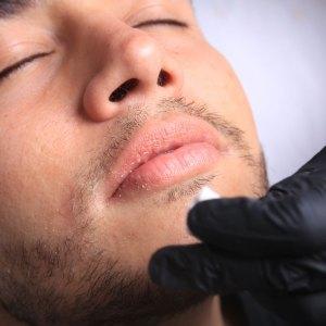 Cierre agujero piercing