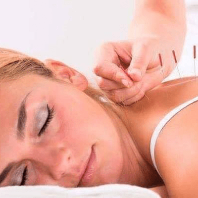 Acupuncture Treatment Roswell Ga