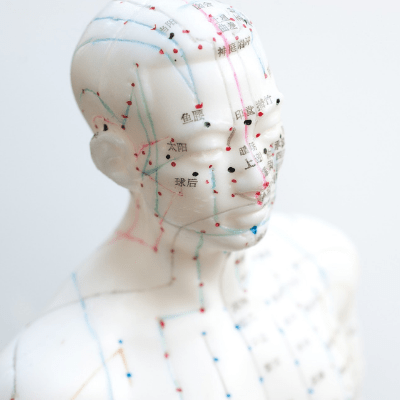 Acupuncture healing technologies