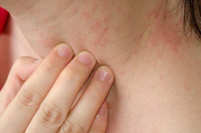 Dieta Sem Lactose: Pode melhorar os sintomas de alergia. Imagem: (Divulgação)