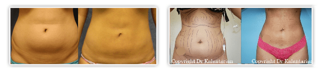 Liposuction Orange County clients Before After Liposuction procedure by Dr Kalantarian