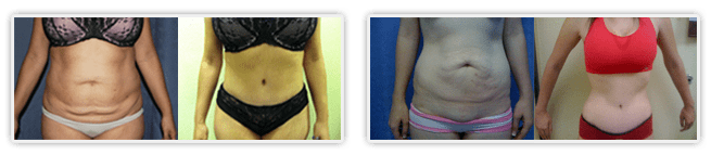 Tummy tuck orange county